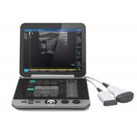 Buy cheap Gray Color S880 Portable Ultrasound Scanner Patient Monitoring Devices from wholesalers