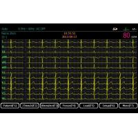 Buy cheap ECG Machine Digital Twelve Channels ECG EM-1203 from wholesalers